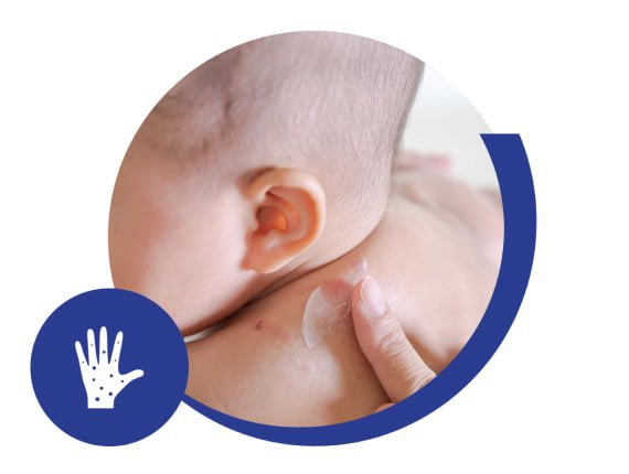 Alergia alimentaria múltiple (AAM)